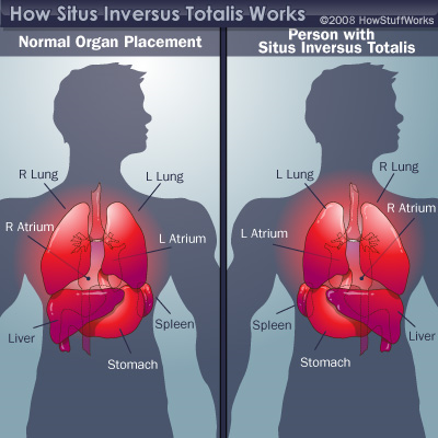 image of normal organ placement versus person with situs inversus totalis