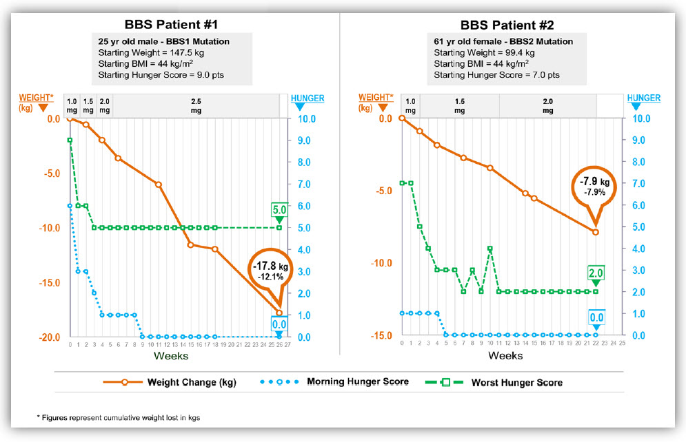 Weight loss figure for 25 year old male BBS patient and 61 year old BBS patient